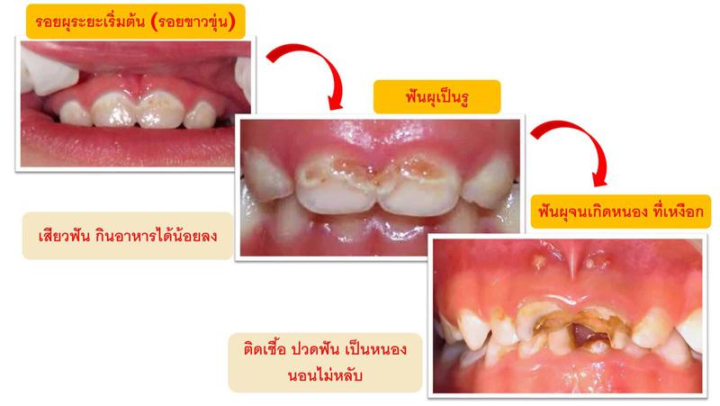 เด็กวัย 1-3 ปี, พัฒนาการเด็ก, สุขภาพ, ฟันผุ, ฟันน้ำนม, เเพทย์, ทันตเเพทย์