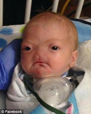 โรคเด็ก,หายาก,ไม่มีจมูก,พิการ,พิการแต่กำเนิด,Arrhinia