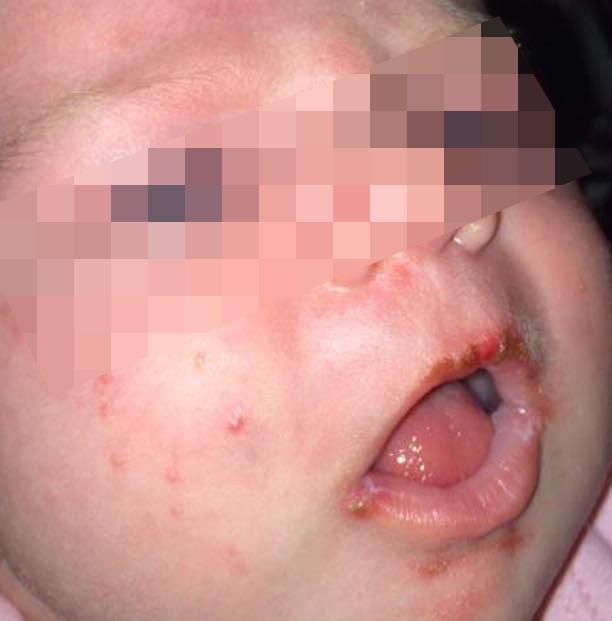 การเลี้ยงดู,สุขภาพลูก,เริม,ส่าไข้,ลูกป่วย,เจ็บป่วย,เด็กป่วย,ทารก,แรกเกิด,ทารกแรกคลอด