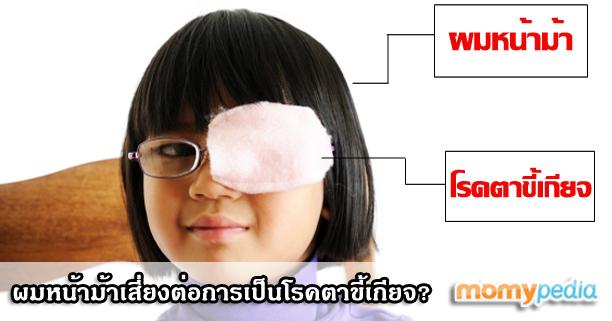 ผมหน้าม้า,สายตาขี้เกียจ,โรคสายตาขี้เกียจ,โรคตาขี้เกียจ,ผมหน้าม้าทำให้เป็นโรคตาขี้เกียจ,ผมหน้าม้าทำให้สายตาขี้เกียจ,โรคเกี่ยวกับดวงตา,เด็กเล็กเป็นโรคตาขี้เกียจ,ลูกเป็นโรคตาขี้เกียจ,โรคตาขี้เกียจคืออะไร,โรคสายตาขี้เกียจคืออะไร,วิธีแก้ไขสายตาขี้เกียจ,ลูก3ขวบเป็นโรคตาขี้เกียจ,ตาเข,ตาเหล่,ตาเอียง