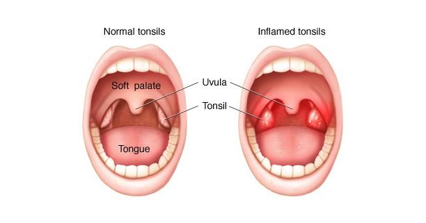 โรคคออักเสบ,ต่อมทอนซิลอักเสบ,โรคที่เด็กๆ ต้องเจอ,อักเสบ,คออักเสบ,ต่อมทอนซิล