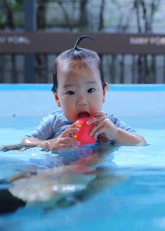 Ear pit, รูหูอักเสบ, มีรูตรงหู, Ear pit อักเสบ, การผ่า Ear pit, โรคภัยในเด็ก, เด็กเรียนว่ายน้ำ, ภัยเงียบ, การเลี้ยงลูกวัย 1-3 ปี