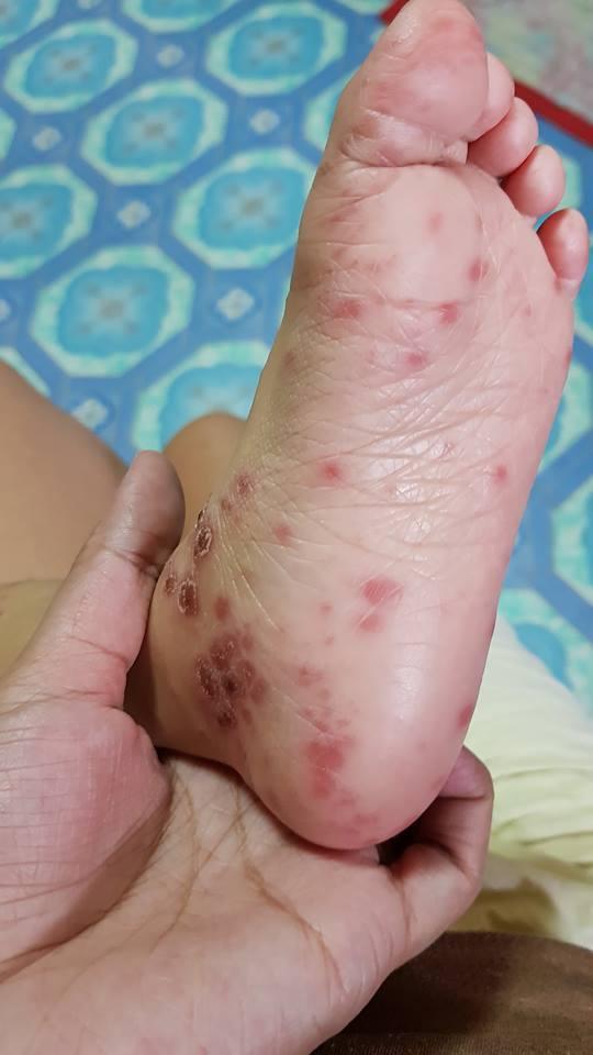 โรคมือเท้าปาก, อาการโรคมือเท้าปาก, รักษาโรคมือเท้าปาก, ยาโรคมือเท้าปาก, วัคซีนโรคมือเท้าปาก, ป้องกันโรคมือเท้าปาก, ค่ารักษาโรคมือเท้าปาก, วิธีสังเกตโรคมือเท้าปาก, ของเล่นมีเชื้อโรคมือเท้าปาก, เครื่องเล่นห้างมีเชื้อโรคมือเท้าปาก, บ่อบอลมีเชืื้อโรคมือเท้าปาก, บ้านบอลมีเชื้อโรคมือเท้าปาก, ทำความสะอาดป้องกันเชื้อโรคมือเท้าปาก, ฆ่าเชื้อป้องกันโรคมือเท้าปาก, ตุ่มโรคมือเท้าปาก, แผลในปากโรคมือเท้าปาก