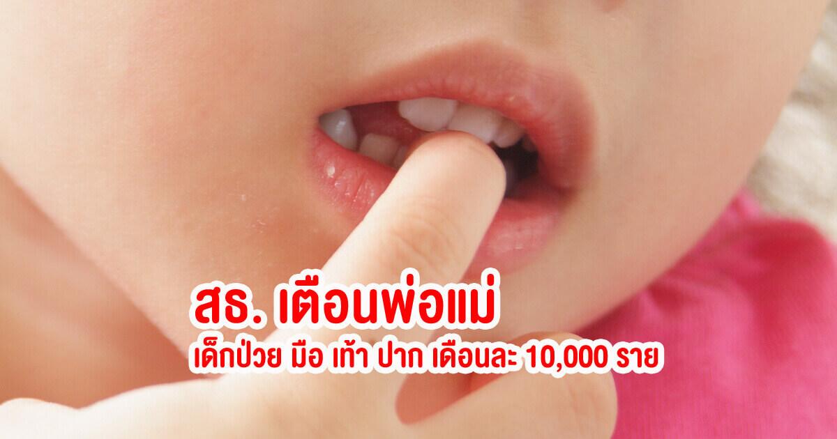 โรคหน้าฝน, มือเท้าปาก, ลูกเป็นมือเท้าปาก, โรคมือเท้าปาก, เด็กป่วย, เด็กป่วยเป็นมือเท้าปาก