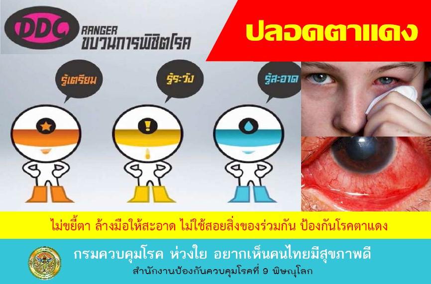โรคติดต่อ,ตาแดง,โรคตาแดง,โรคภัยไข้เจ็บ,ป่วย,ป้องกันตาแดง,รักษาตาแดง,โรคระบาด,โรคหน้าฝน,ระบาดหน้า
