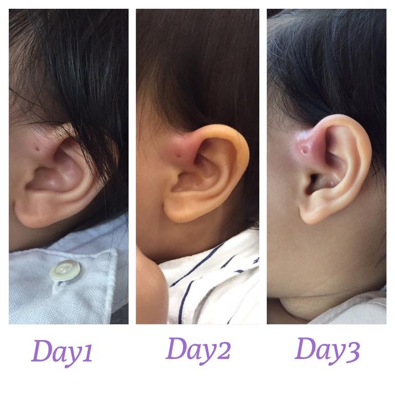 Ear pit อักเสบ ภัยเงียบของเด็กมีรูเล็กๆ ข้างหู