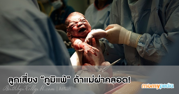 โรคภูมิแพ้,เด็กภูมิแพ้,ภูมิแพ้ในเด็ก,ภูมิแพ้,ผ่าคลอด,จุลชีพโพรไบโอติก,ตั้งท้อง,ตั้งครรภ์,คลอดลูก,ทารก,คลอดเอง,คลอดธรรมชาติ,บล๊อคหลัง,แรกเกิด